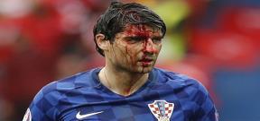 اصابة دموية للاعب كرواتيا امام تركيا