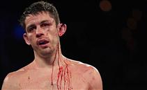 قطع اذن لاعب في مباراة ملاكمة