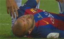 إصابة قوية لماسكيرانو أمام ألافيس