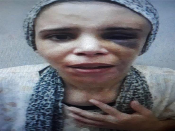 آثار الضرب على وجه الضحية قبل مقتلها