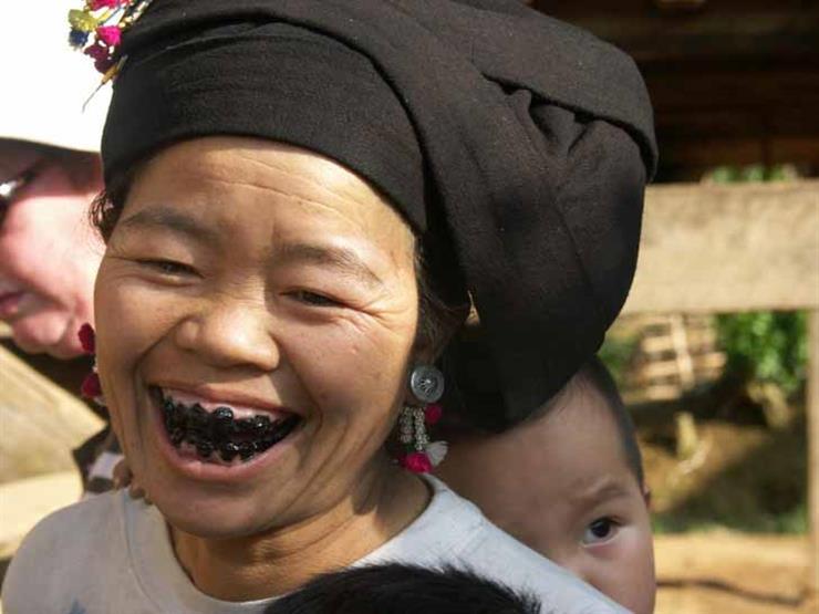 تغيير الأسنان باللون الأسود