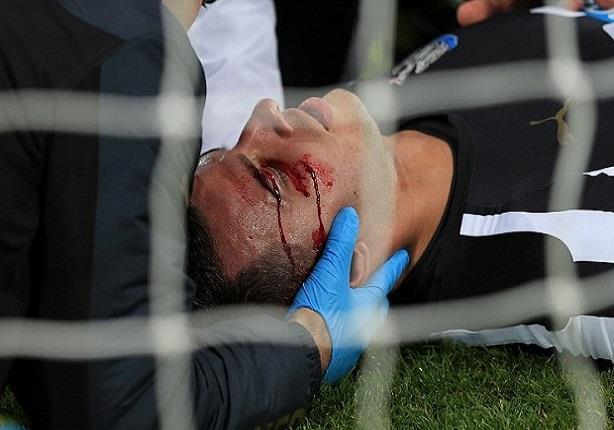 بالفيديو- إصابة دموية للاعب نيوكاسل في الدوري الإنجليزي