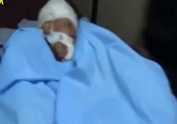 وصول مصابين بتفجيرات سيناء الى مستشفى جامعة القناة بينهم طفل يرقد في غيبوبة