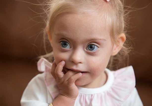 فتاة من ذوي الاحتياجات الخاصة تخترق عالم الأزياء