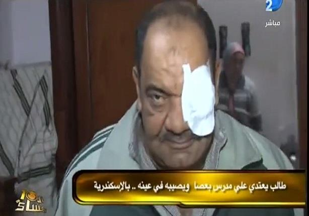 طالب يعتدي على مدرس بعصا ويصيبه فى عينه