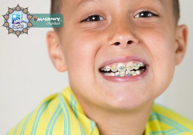 ما حكم الشرع فى تقويم الأسنان؟