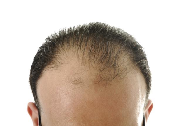للرجل.. شعرك خفيف؟.. 6 حيل تجعله أكثر كثافة!