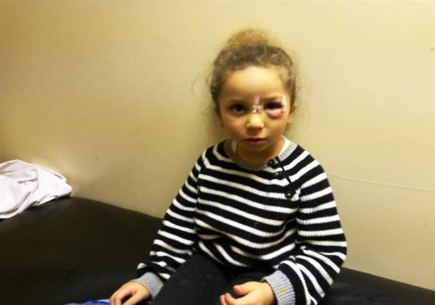 بالصور: شريف منير يكشف عن إصابات بالغة في وجه حفيدته