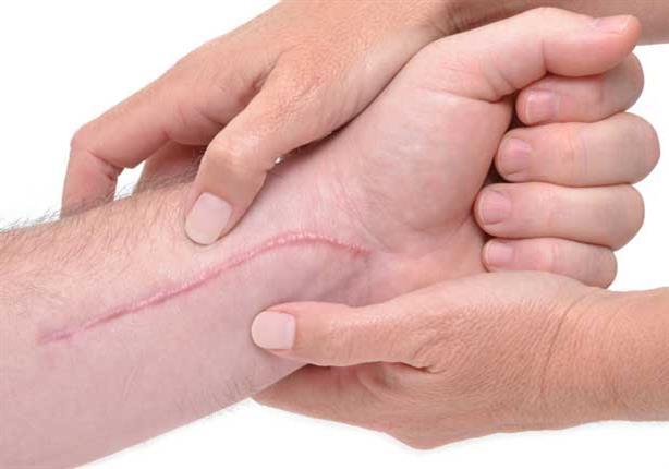 بالصور- تخلص من آثار الجروح بطريقة مبتكرة بعيدة عن عمليات تجميل