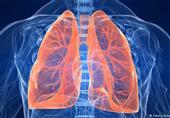 علاج الانسداد الرئوي ممكن بدون استئصال الرئة
