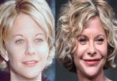 شاهد 10 أسوأ الجراحات التجميلية لمشاهير هوليود