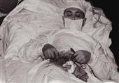 بالصور: 5 أشخاص قاموا بإجراء عمليات جراحية بأنفسهم