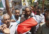 الأطباء العرب يدين الصمت الدولي تجاه حرق رضيع فلسطيني
