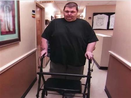 بالصور.. رجل يفقد 188 كيلو من وزنه في عام واحد