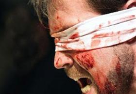 طبيب يفقأ عين زميله بالبحيرة