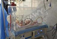 بالصور - جراحة ناجحة بالمخ لرضيع عمره 17 يوما ببني سويف