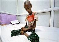 التايمز: ملايين يتضورون جوعا في حرب اليمن المنسية