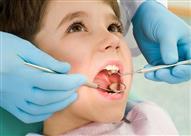 هذا النوع من حشو الأسنان خطر على الأطفال والحوامل