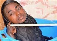 بالصور.. قصة فتاة تعيش في وعاء بلاستيكي بعد توقف نمو أطرافها