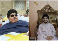 بالصور.. شاب سعودي يقهر السمنة ويفقد 500 كيلو جراماً من وزنه!