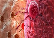 اكتشافات علمية تثبت أن إصابات السرطان أقدم بكثير مما كان يعتقد