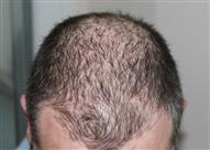6 عادات شائعة تؤدي إلى تساقط الشعر