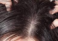 كيفية علاج قشرة الشعر