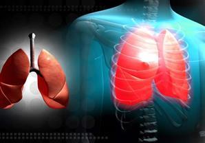 تسبب مرض خطير.. دراسة تحذر من خطورة أبخرة اللحام