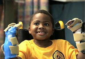 أطباء ينجحون في أول عملية لزراعة يدين لطفل في العالم