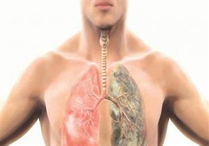 يساهم في البقاء على قيد الحياة..عقار مناعي جديد لعلاج سرطان الرئة