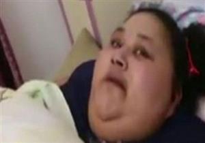 جراح هندي يجري جراحة لإنقاص وزن مصرية تزن 500 كيلوغرام