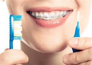6 نصائح للأطعمة الضارة بتقويم الأسنان وكيفية تنظيفه