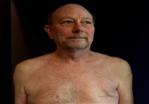 علامات الإصابة بسرطان الثدي لدى الرجال