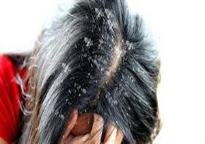 4 مواد طبيعية لعلاج قشرة الشعر بسهولة..غير الخل