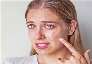 تحذير .. لا تضعي هذه المكونات الطبيعية على بشرتك!
