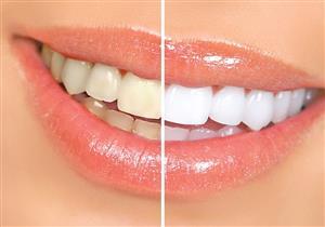 4 أنواع أطعمة تساعدك على تنظيف وتبييض أسنانك بشكل طبيعي