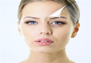 تعرف على فوائد بيكربونات الصوديوم على الشعر والبشرة