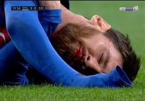 بالفيديو.. إصابة دامية لميسي خلال مباراة الكلاسيكو