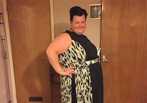 بالصور- كيف تغيرت حياة هذه السيدة بعد خسارة 90 كيلو جراماً من وزنها؟