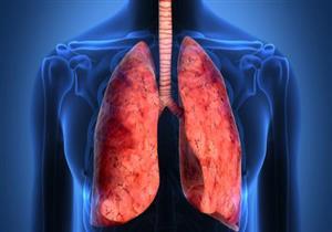 أسباب متعددة للانسداد الرئوي المزمن.. إليك الأعراض وطرق العلاج