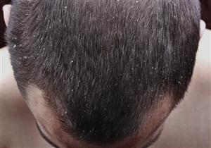 تركيبة بسيطة لعلاج قشرة الشعر.. وهذه تكلفتها - صورة