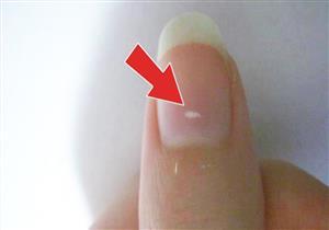 ما سبب ظهور البقع البيضاء على الأظافر.. ومدى خطورتها؟