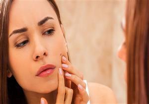 لماذا تظهر حبوب البشرة قبل الدورة الشهرية؟.. إليك طرق العلاج