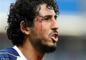 """بالفيديو.. إصابة دموية لحجازي في ملخص ظهوره """"الفدائي"""" ضد بيرنلي"""