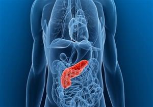 5 أطعمة مفيدة لمرضى التهاب البنكرياس (صور)