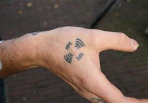 """بالفيديو.. بريطاني يعلن عن نجاح زراعة """"مفتاح سيارة"""" داخل يده"""