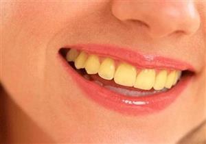 أطعمة تؤدي لاصفرار أسنانك وتتلفها