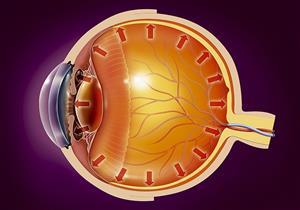 التهاب العصب البصري.. إهماله يؤدي للعمى والعلاج بسيط