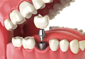 عند تركيب الأسنان.. اتبع هذه النصائح حتى تبدو طبيعية