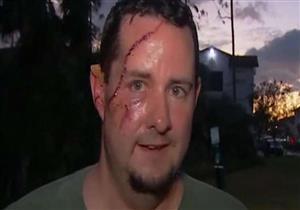 بالفيديو- رجل ينجو من الموت بـ 41 غرزة في وجهة